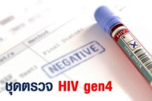 ชุดตรวจ hiv gen4 เป็นอย่างไร ดีกว่าการตรวจคัดกรองเอชไอวีด้วยวิธีอื่นไหม