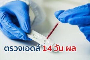 ตรวจเอดส์ 14 วัน ผล ที่ได้จะสามารถวางใจได้หรือไม่ แม่นยำแค่ไหน